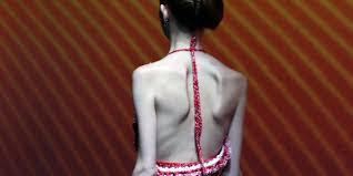 mannequin anorexique